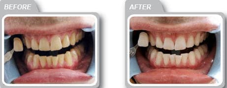 laser whitening after