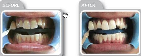 teeth system