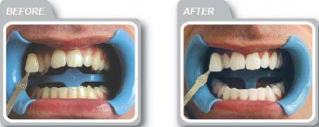 tooth whitening system
